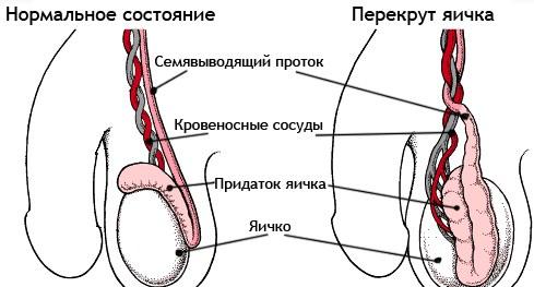 как должна выглядеть сперма фото